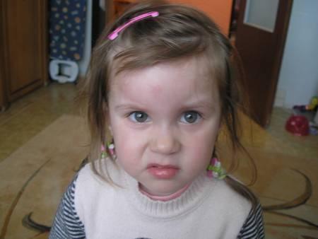 Опух глаз у ребенка от укуса комара, первая помощь