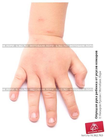 После укуса комара опухла рука у ребенка или взрослого