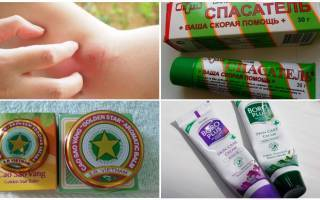 Лучшие мази от укусов насекомых и эффективные народные средства