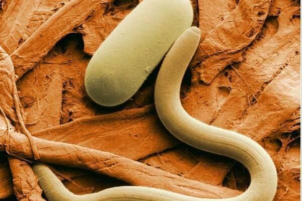 Как избавиться от луковой нематоды? описание вредителя и способы борьбы с ним