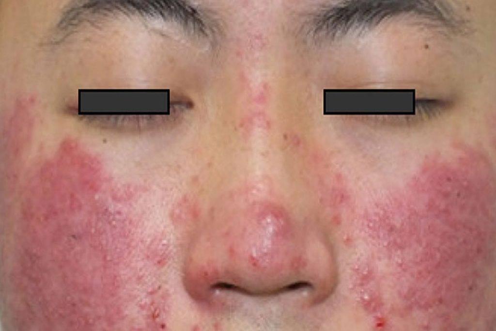Подкожный клещ демодекс (Demodex) на лице у человека: фото, описание и как бороться