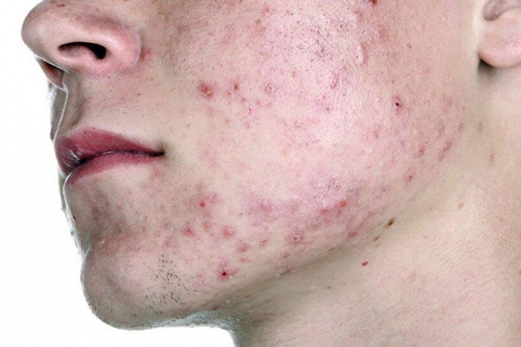 Демодекоз у человека: заразен или нет