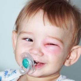 Ребенка укусила оса: что делать?