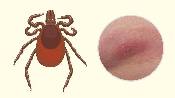 Что делать если после укуса комара у ребенка образовался отек, опухоль и покраснение