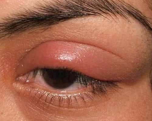 Чем снять отёк, если мошка укусила в глаз