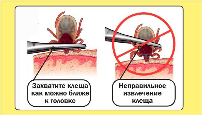 Какое лечение необходимо при укусе клеща?