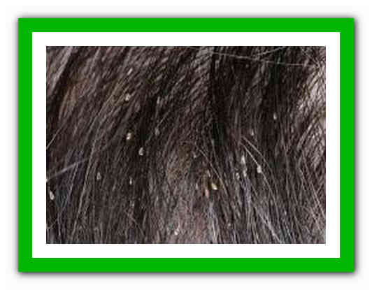 Могут ли быть вши на окрашенных волосах?