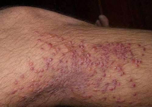 Как выглядят укусы вшей на теле и чем лечить