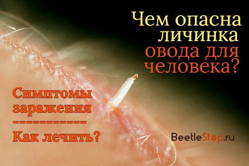 Личинки мухи живые на теле человека