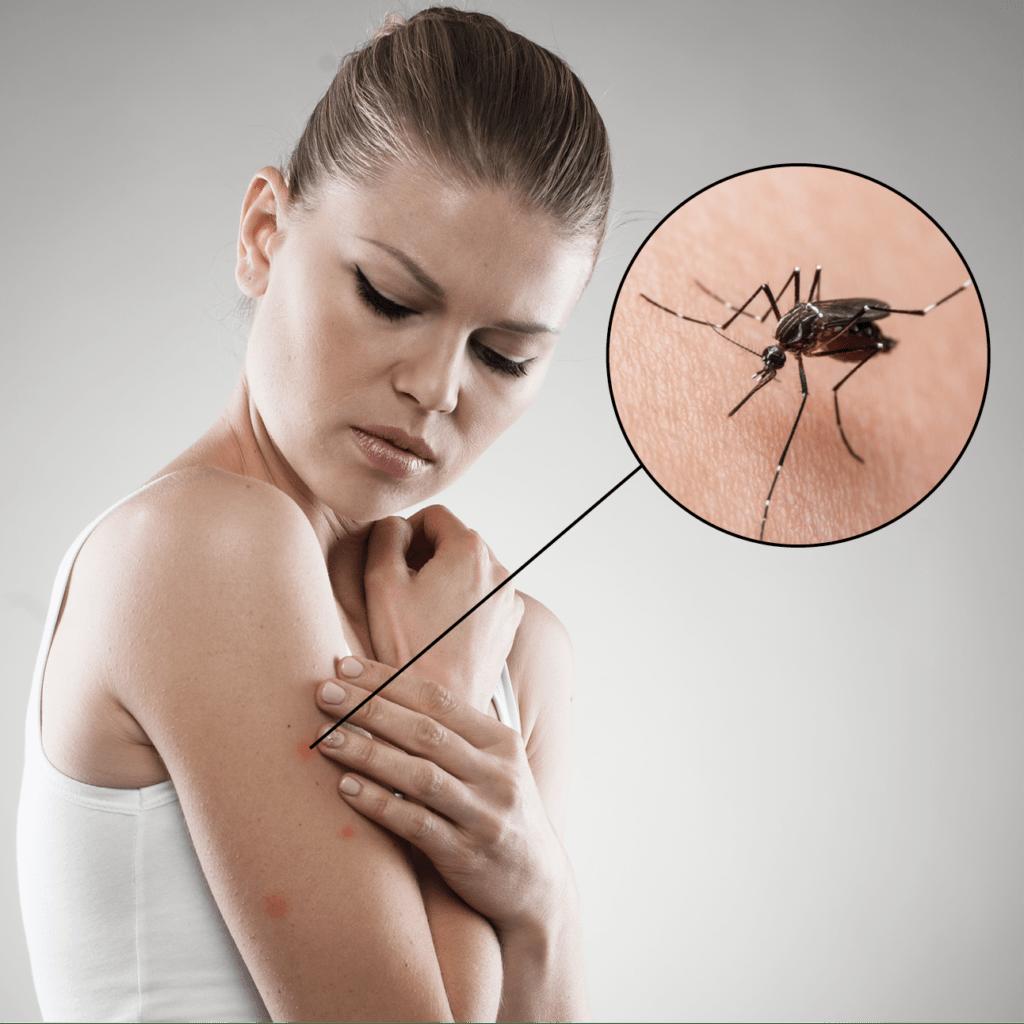 Как видят комары и что их привлекает к человеку. далеко ли улетают комары от места рождения и почему некоторым видам удалось расселиться по всему миру? комары летят на свет