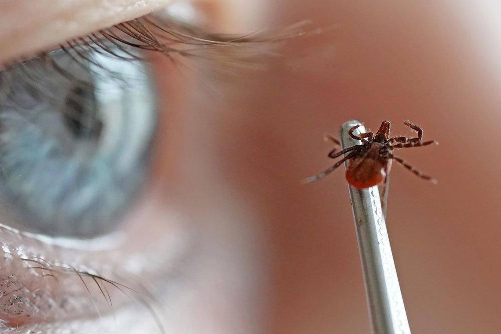 Чем мазать укусы комаров: 15 эффективных мазей