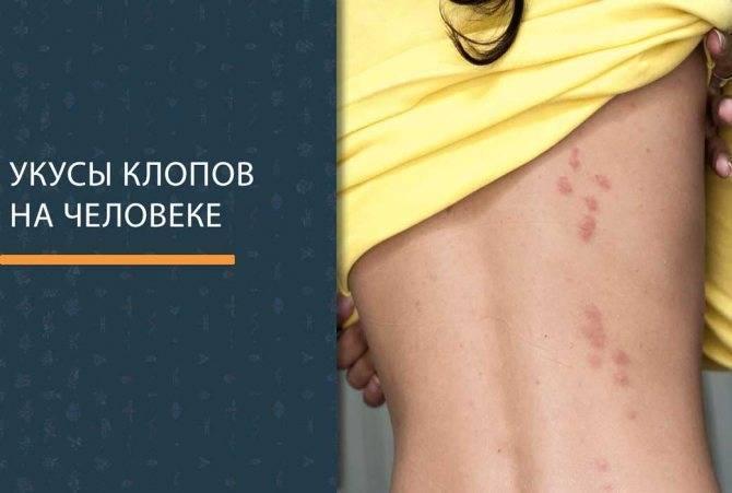Как лечить укусы клопов на теле человека