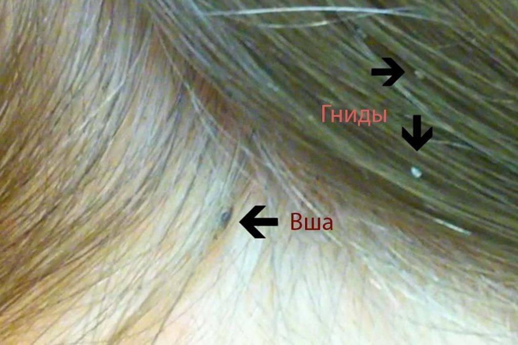 Шампунь хигия от вшей и гнид – обзор с отзывами и инструкцией по применению