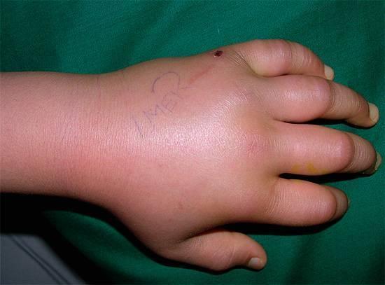 Что делать, если после укуса комара опухла нога