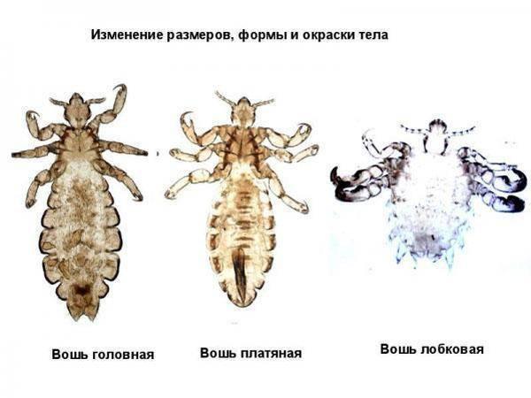 От чего появляются вши на голове и как размножаются?