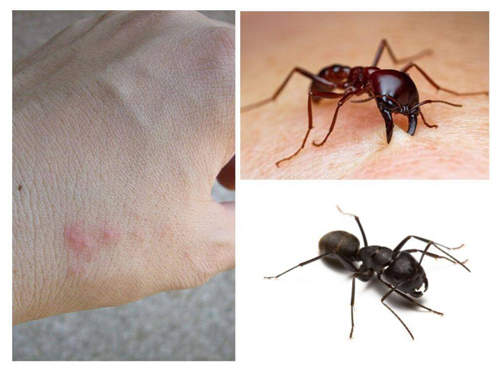 Как лечить укусы муравьев?
