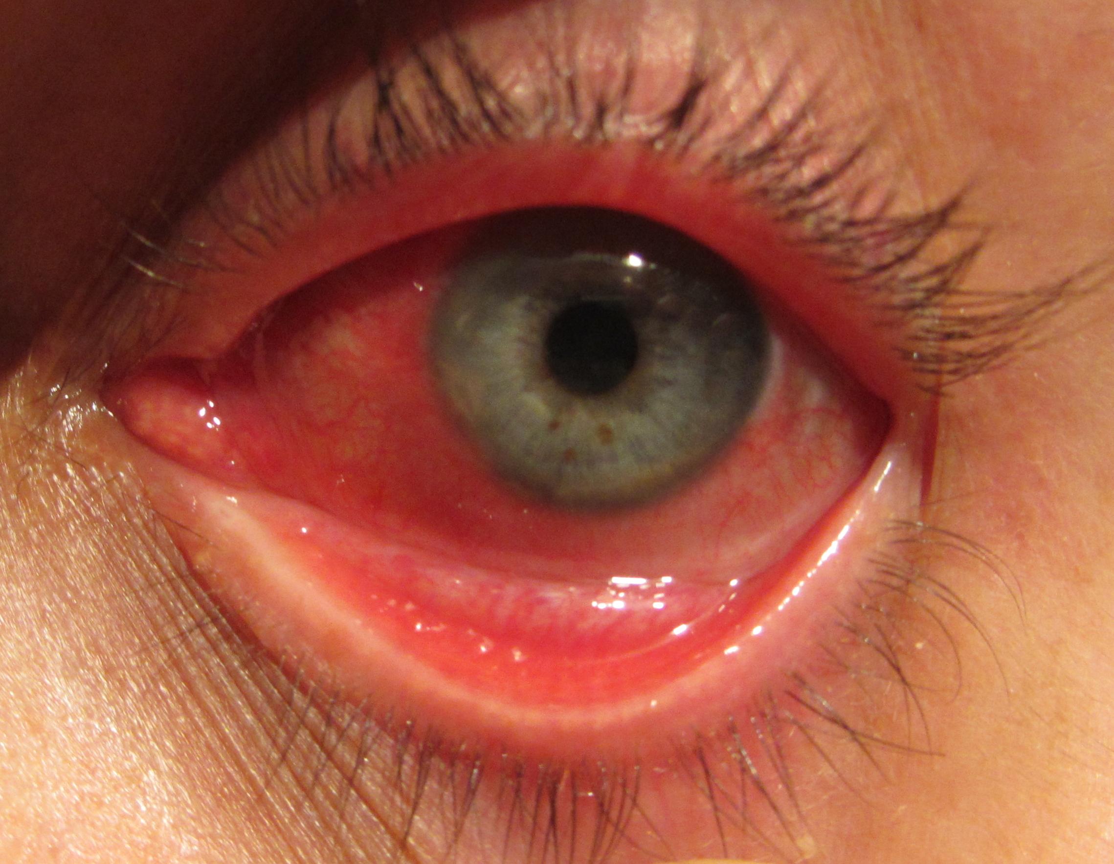 Аллергия на пылевых клещей и ее лечение