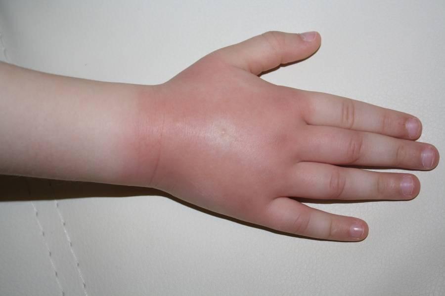 Отеки от укусов комаров у детей: причины и первая помощь
