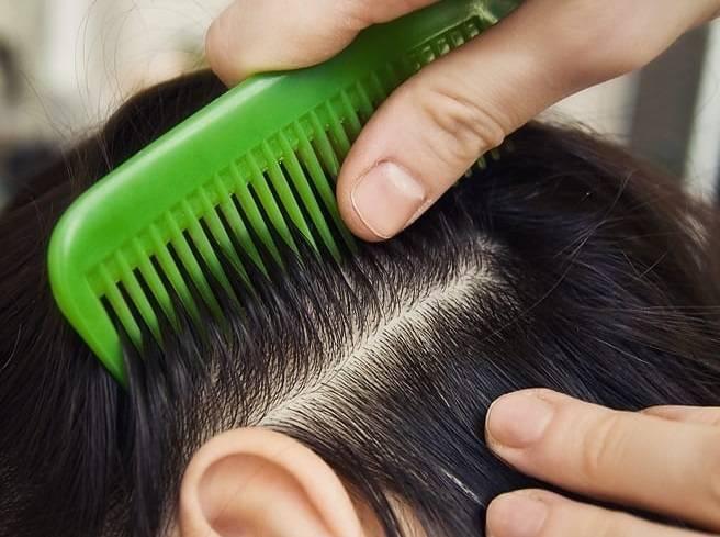 Как выглядят укусы бельевых, головных, платяных, лобковых вшей, чем лечить и как долго чешутся