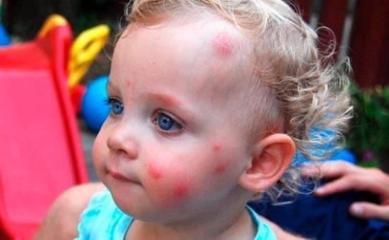 Чем помазать укусы комаров ребенку