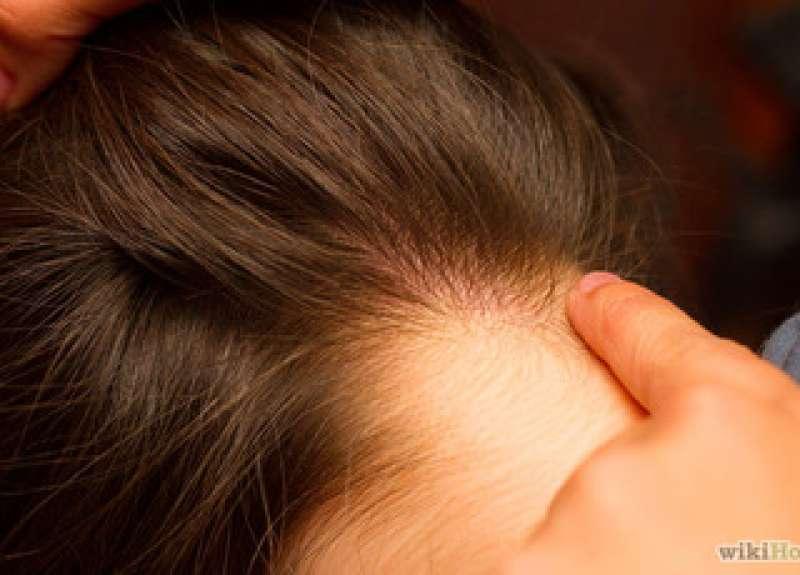 Народные средства от вшей и гнид (педикулёза): полезные рецепты для приготовления в домашних условиях