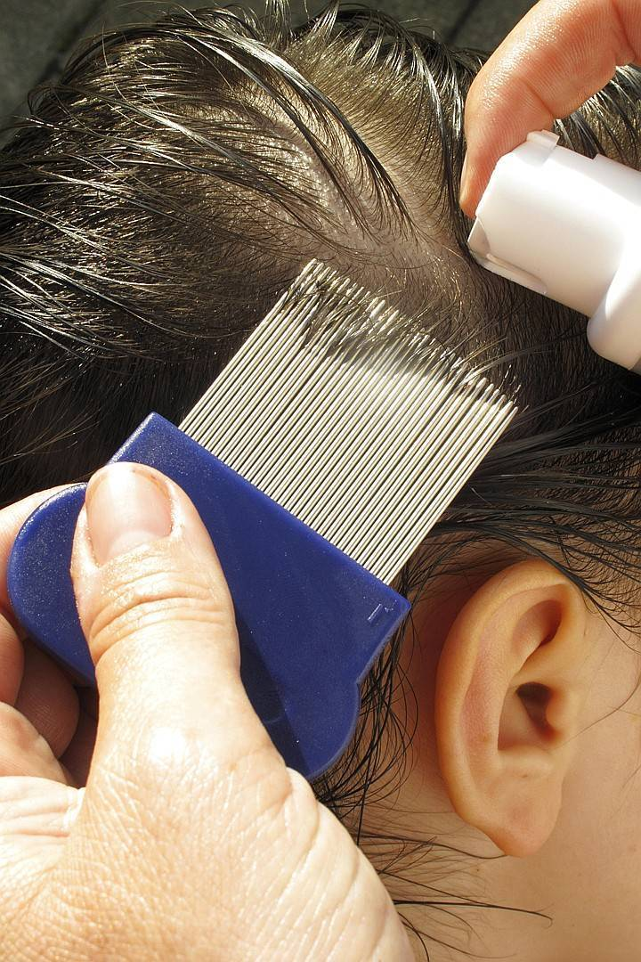 Паразиты на волосах: как выглядят гниды на голове у человека, их фото и особенности развития