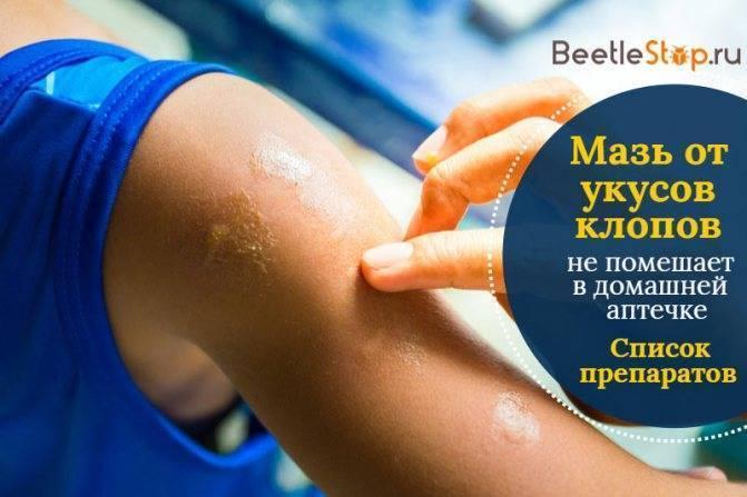 Лечение укусов постельных клопов: 10 лучших средств