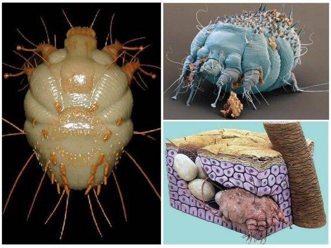 Последствия укусов крысиного клеща. методы борьбы с паразитами