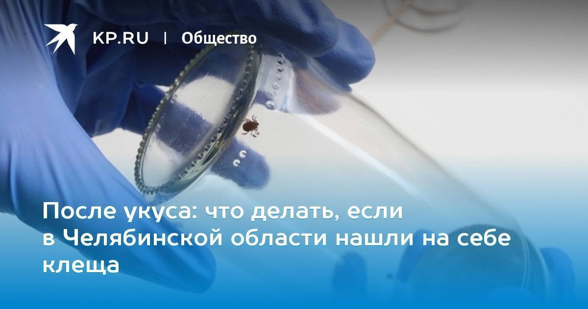 Исследование клеща на определение антигена вируса клещевого энцефалита