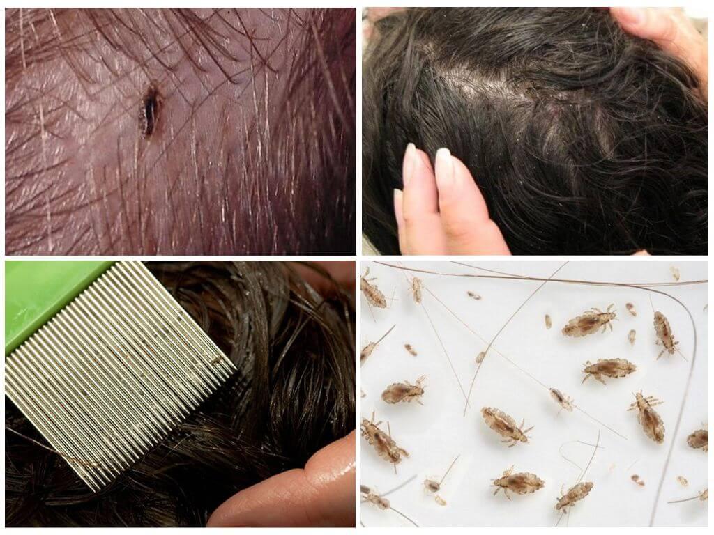 Причины зуда кожи головы, способы его устранения