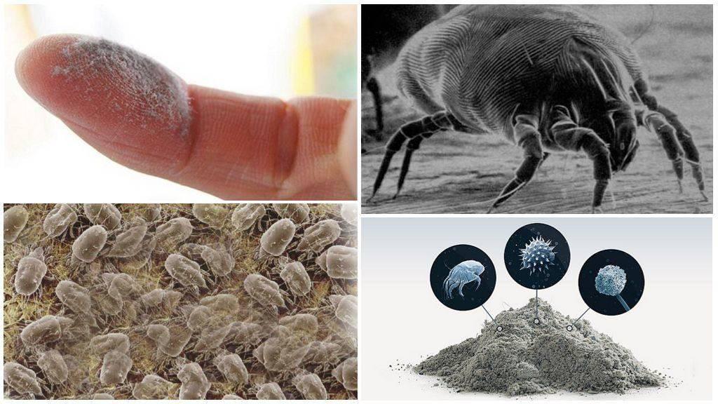 Опасность в доме – пылевые клещи. почему возникает аллергия на членистоногих и как от нее избавиться?