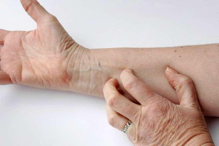 Что делать, если человека укусил клещ