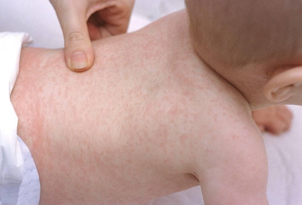 Реакция на укус комара у ребенка