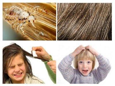 Важный вопрос: живут ли вши на окрашенных волосах