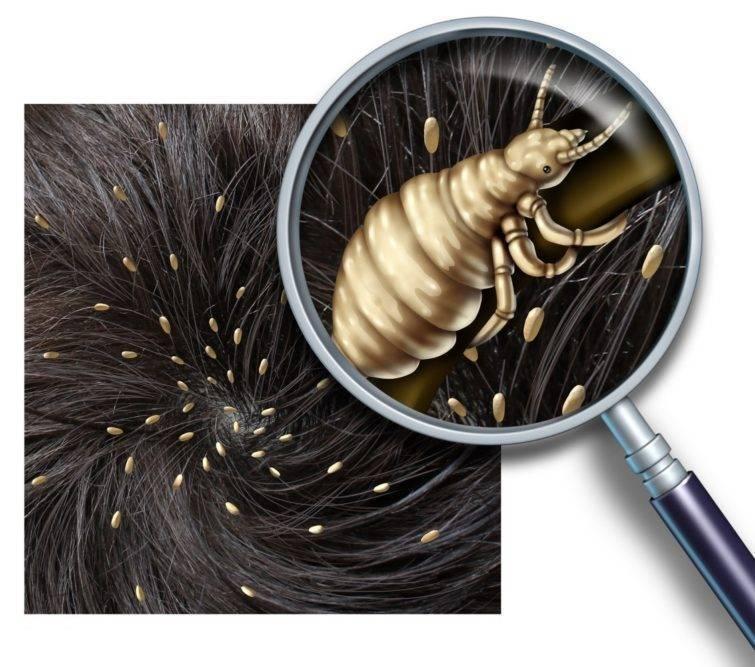 Как отличить гниды от перхоти – перхоть после вшей