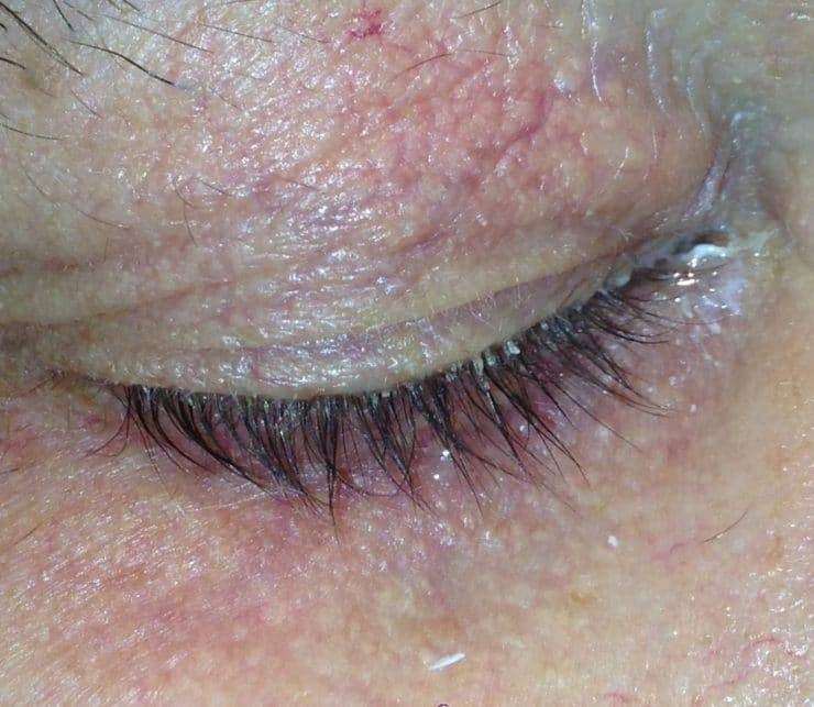 Причины заболевания и лечение глазного клеща