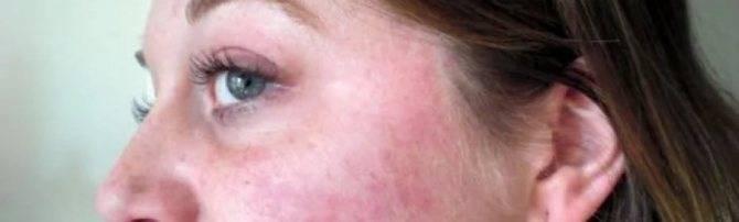 Демодекоз на лице у человека. схема лечения, препараты, народные средства