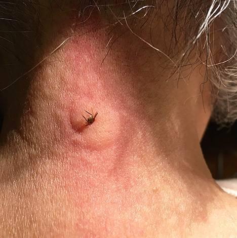 Симптомы укуса энцефалитного клеща у человека, первые признаки заражения