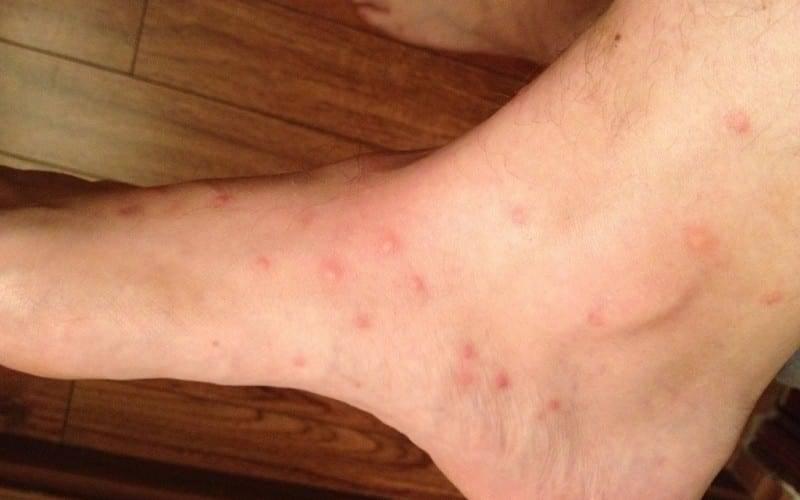 Появились волдыри на теле и чешутся как укусы от комара? помощь и лечение