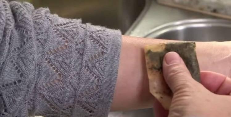 Чем лечить укусы блох у человека