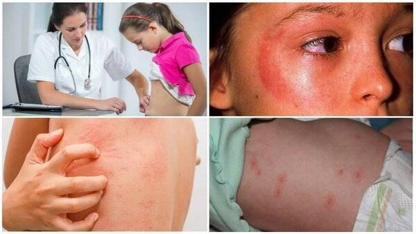 Чем лечить комариные укусы у детей?