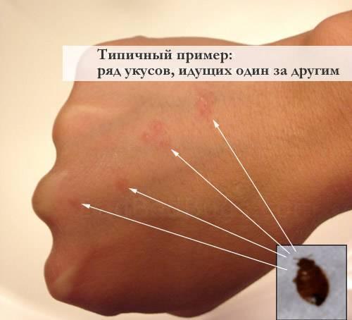 Как выглядят укусы клопов на коже человека: признаки, размеры, симптомы, фото