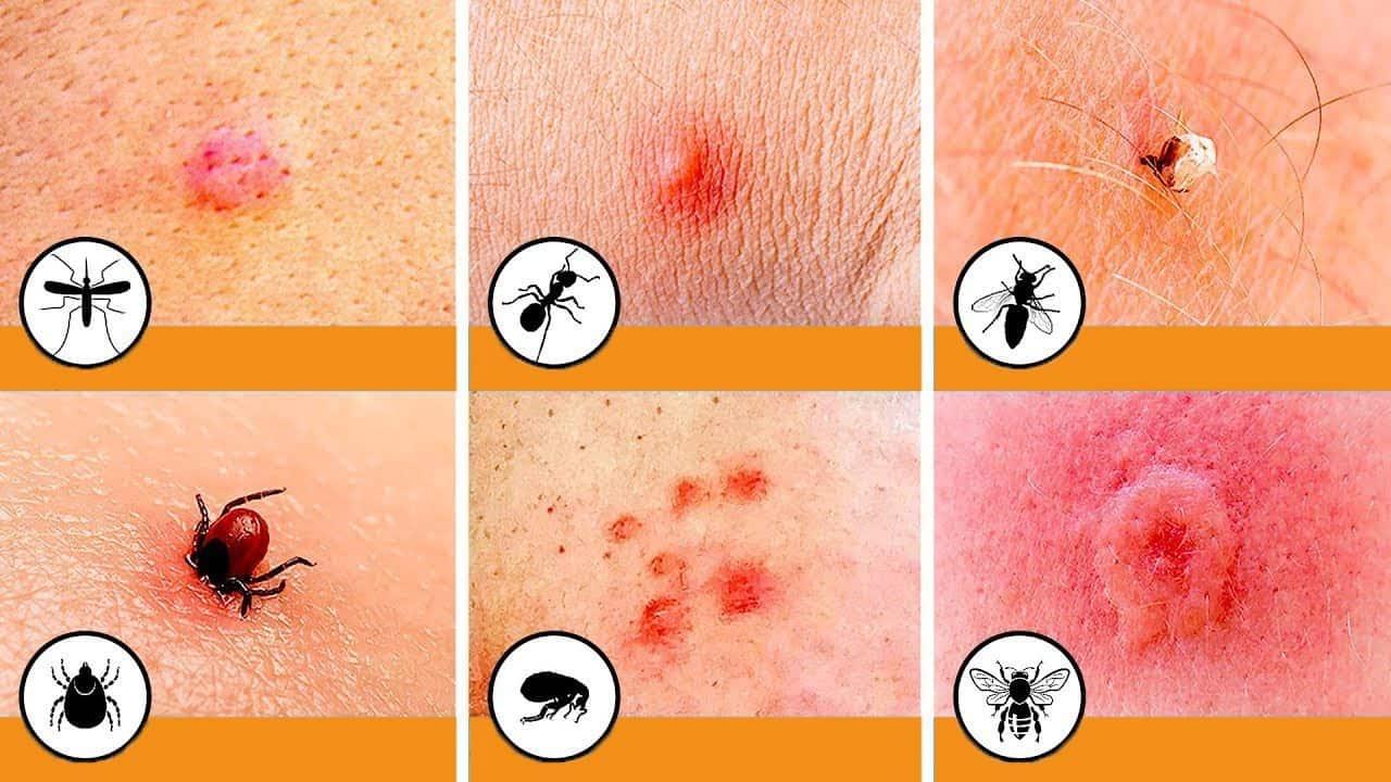 Как избавиться от следов укусов комаров