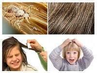 Педикулез у детей: что делать, если у ребенка вши на голове