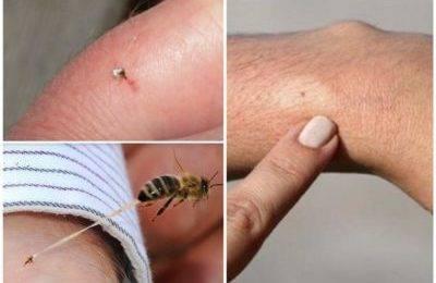 Первая помощь при укусах насекомых, змей и ожоге от медузы