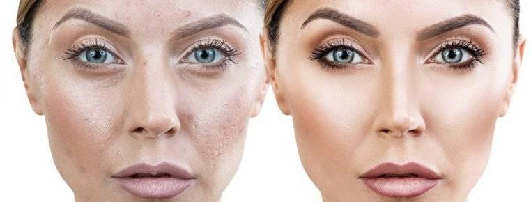 Клещ демодекс на лице: причины, симптомы и особенности лечения