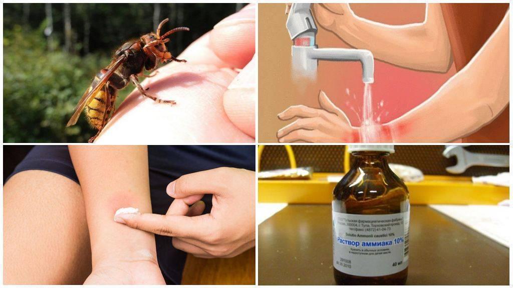 Укусила оса — что делать в домашних условиях? первая помощь и лечение