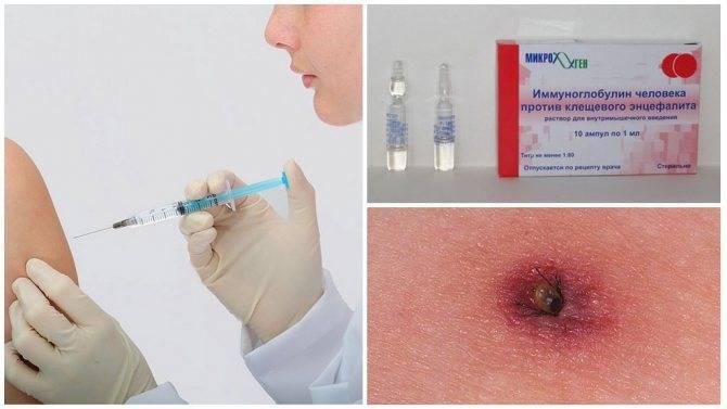 Противоклещевой иммуноглобулин - показания к применению
