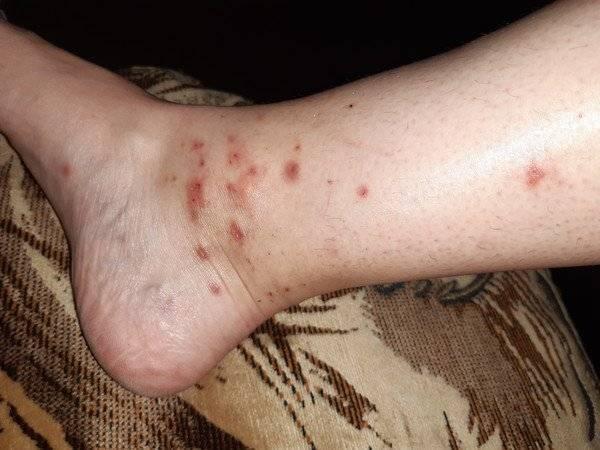 Причины зуда после укуса комаром