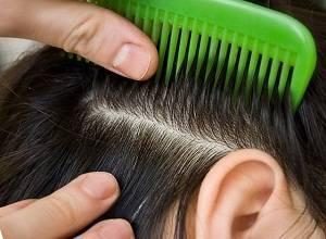 Способы применения дегтярного мыла от вшей и гнид, отзывы об эффективности